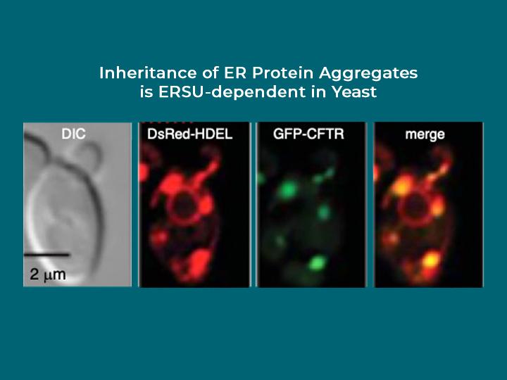 Inheritance of ER protein aggregates is ERSU-dependent in Yeast